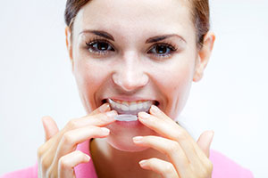 Tooth whitening kits pharmacy