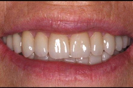 After - gaps between teeth