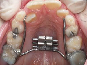lack of tongue pressure can impede the growth of upper jaw