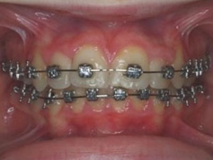 braces assist in the treatment of shaping upper jaw