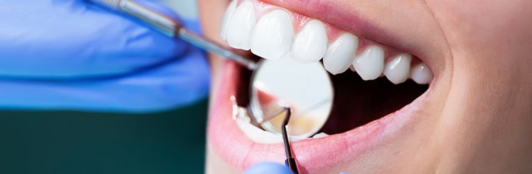 causes of tooth discolouration