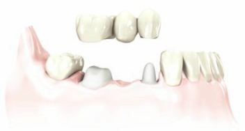 a bridge is placed over damaged teeth to restore teeth