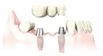 a bridge is affixed by screws to replace missing teeth