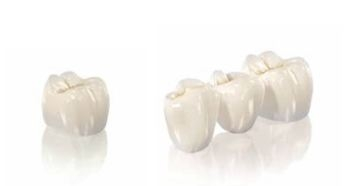 ceramic bridges replace teeth that have been damaged