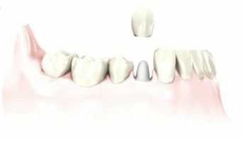 dental crown goes over the natural tooth