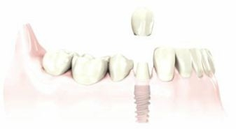 dental crown is secured with an implant screw