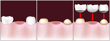 Tooth replacement with a traditional bridge