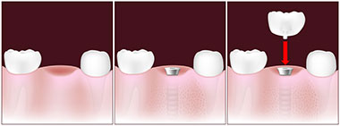 Tooth replacement with an implant