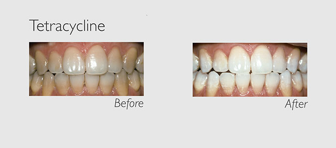 tetracycline teeth before and after teeth whitening