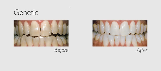 genetic teeth before and after teeth whitening