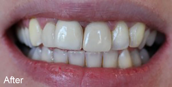 After teeth contouring treatment
