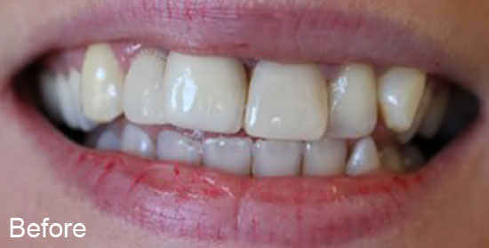 Before tooth contouring treatment