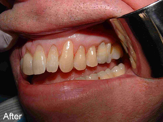 After worn teeth neck treatment