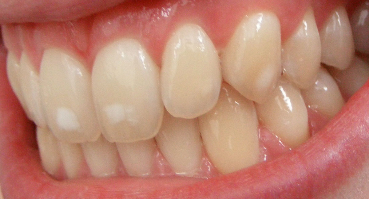 White spots on front teeth