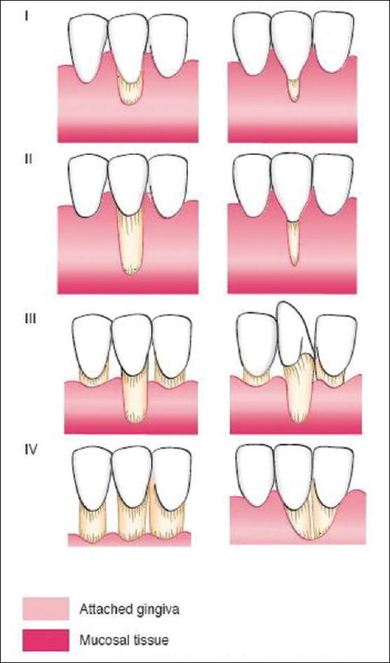 Millers classification of gingival recession