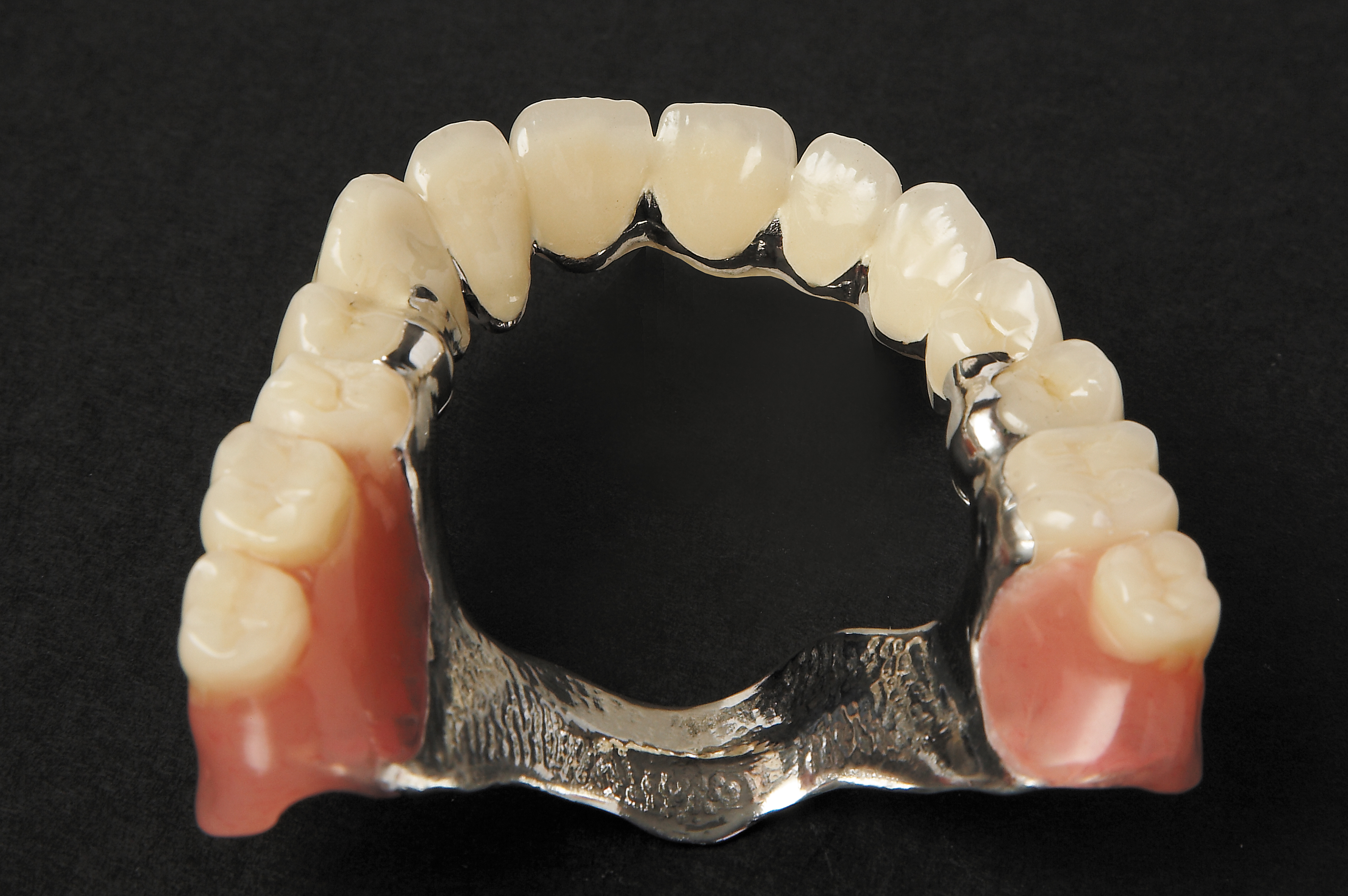 full chrome denture