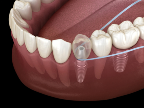 Floss Around Your Implant