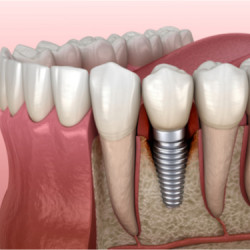 4 tips to keep your dental implant safe from peri-implantitis