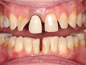 Before crowns and veneers