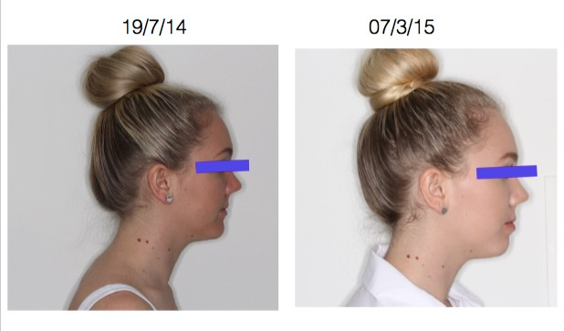 Before and after jaw expansion side view