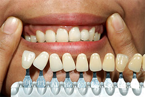 Prepping teeth for whitening