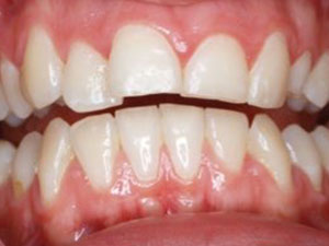 patients teeth from incorrect resting tongue position