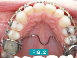 teeth after upperarch treatment
