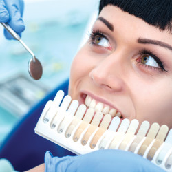 TEETH WHITENING VS VENEERS - WHICH OPTION IS RIGHT FOR ME?