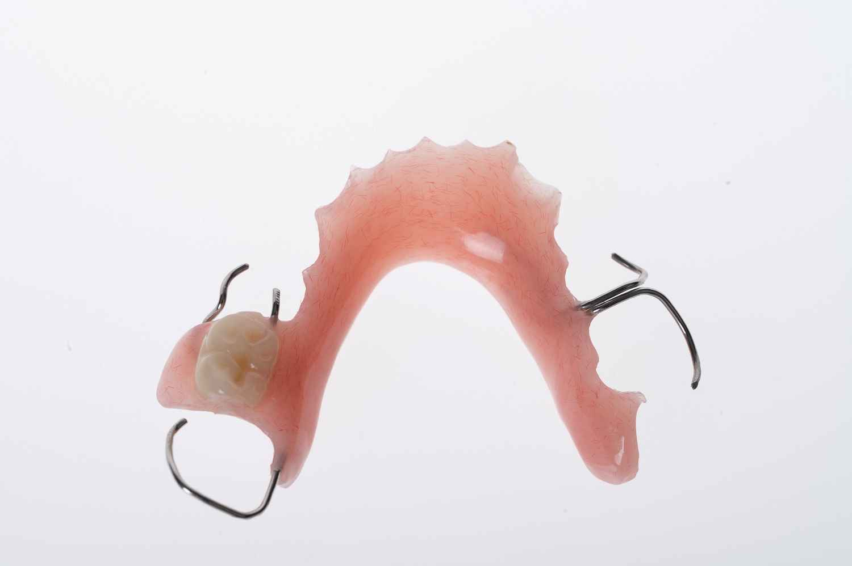 Custom acrylic partial denture