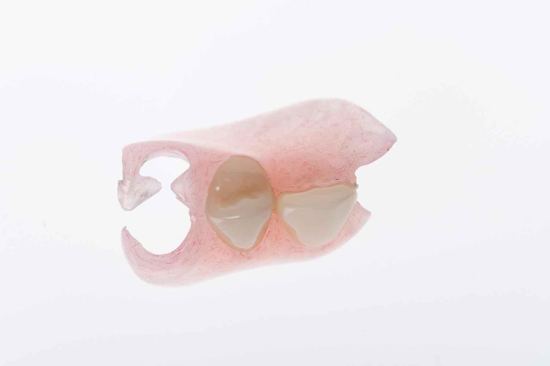EziFit partial denture