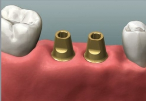 300_Dentist Perth Implant Abutment
