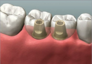 300_Dentist Perth Implant Crown