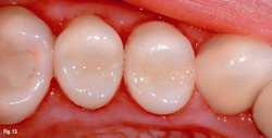 dental composites