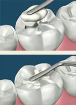 dental composite procedure
