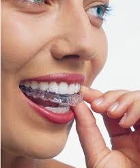 straightening teeth without braces