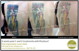 Tattoo Removal Client Examples