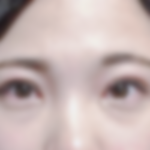 眼瞼下垂 口コミ