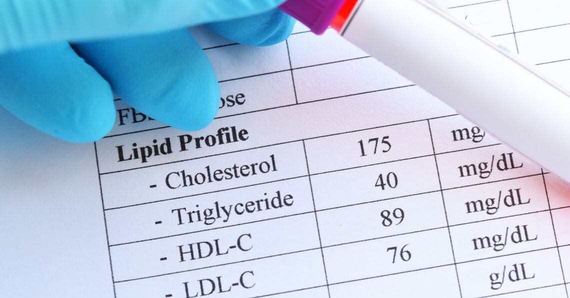 A lipid chart