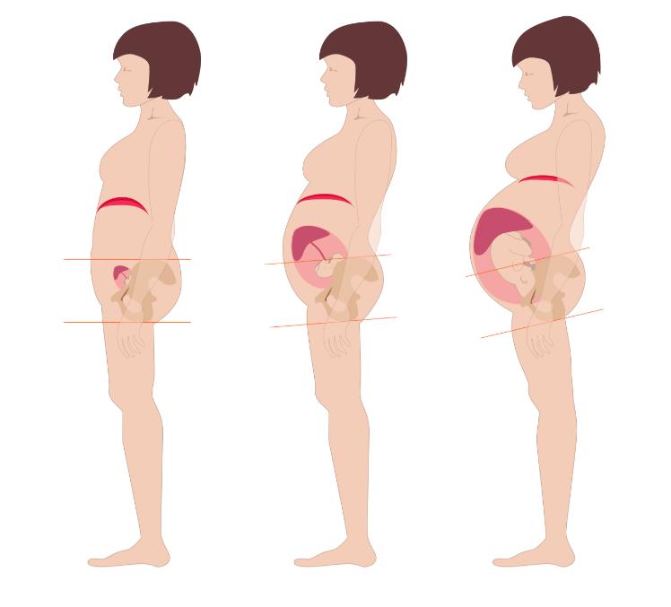 Bilden visar hur hållningen påverkas från första till tredje trimestern