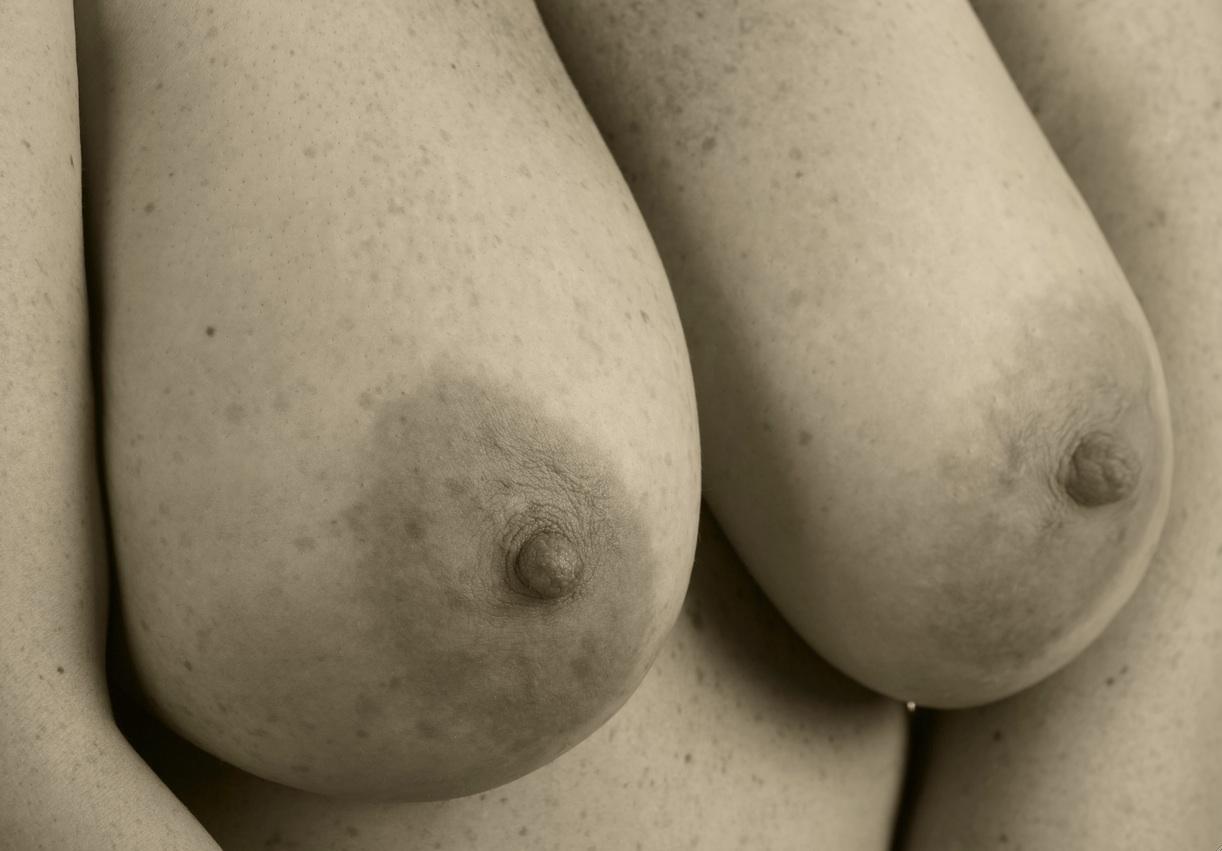 breast 2