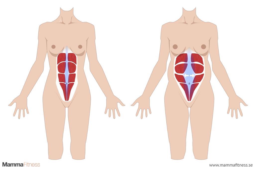 diastasisrecti