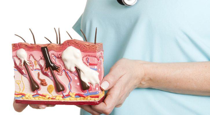 Vuxenacne – kan du påverka den med kostförändringar? Amandas resa till en acnefri hy, del 1