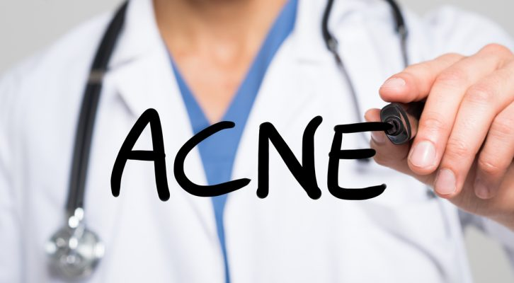 Vuxenacne – kan du påverka den med kostförändringar? Amandas resa till en acnefri hy, del 2