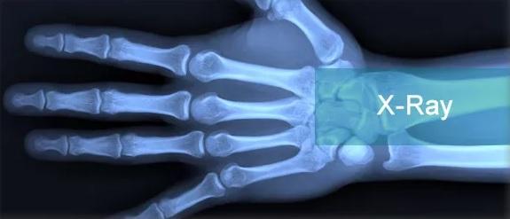 sinar x ray