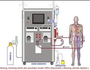 terapi ozon
