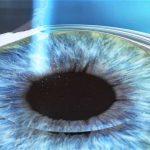 cirugia-refractiva-blog-vida-es-salud