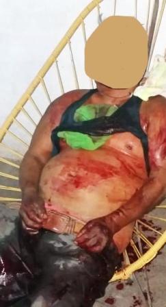 Lo asesinan dentro de su camioneta en Chilapa