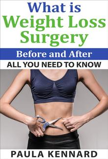 What Is Weight Loss Surgery: All You Need To Know Before And After PDF