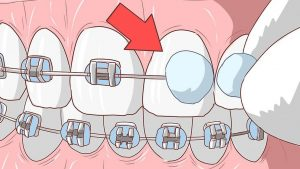 28 natural ways to relieve braces pain without medicine medic pole it is usual to get your lips cut and teeth hurt after wearing braces especially in the first few days once braces are fitted you usually experience solutioingenieria Choice Image