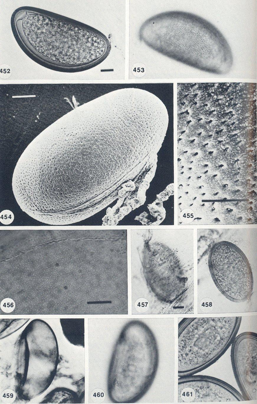 Coelomomyces image